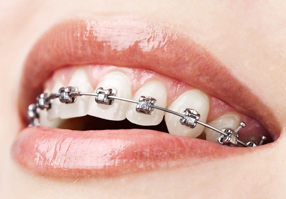 ortodonti-dis-teli