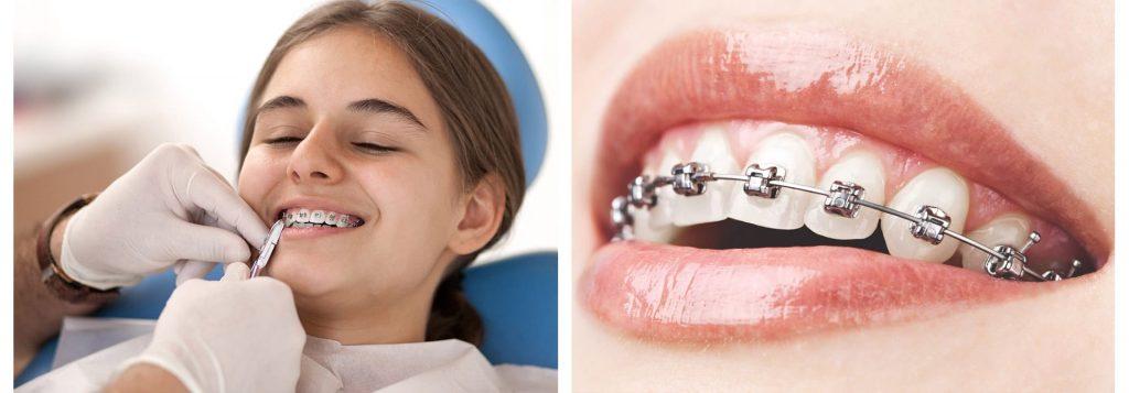 ortodonti-tedavisi