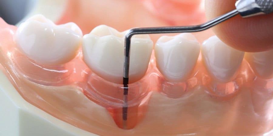 1-parodontalnie-karmany
